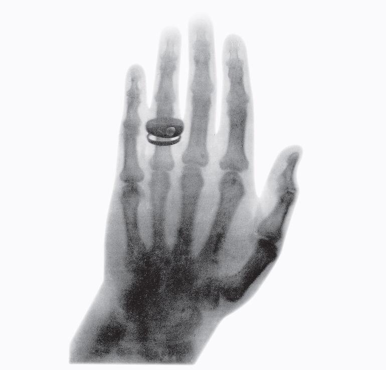 Aufnahme-der-Hand-des-Anatomen-Albert-von-Kölliker,-aufgenommen-anlässlich-des-ersten-öffentlichen-Vortrages-am-23.01.1896